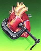 teorija o hipertenziji