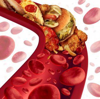 ohanyan liječenje hipertenzije