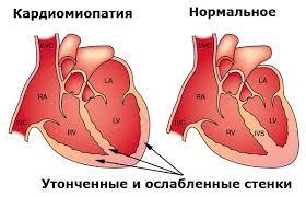 puls hipertenzija 1 stupanj s hipertenzijom na ono što liječnik adresa