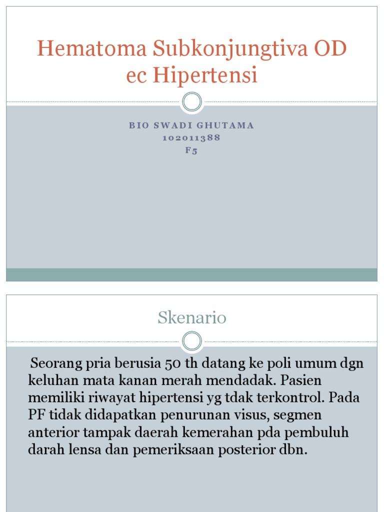 hipertenzija glavni razlozi