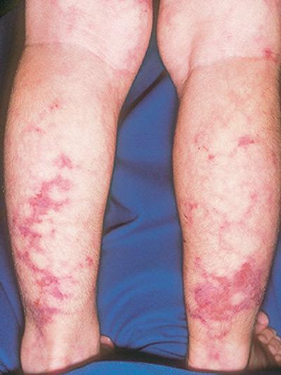 hipertenzija i liječenje entsefalopatiya-)