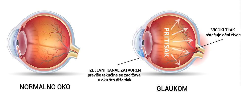 liječenje hipertenzije u glaukoma