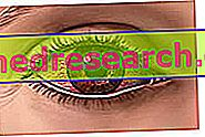 hipertenzija crvene oči)