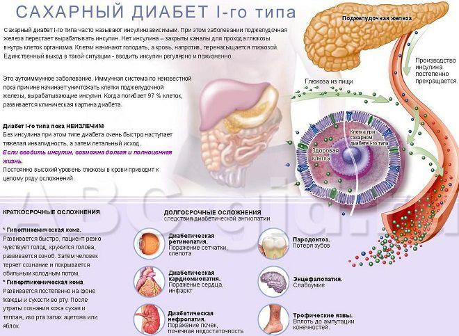 Hipertenzija kod ljudi koji su ovisni o vremenskim prilikama ,hiperbarična žutika