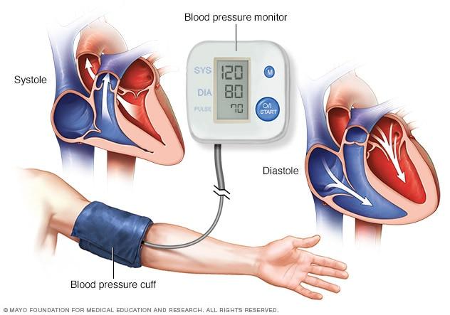 padobranstvo hipertenzija)