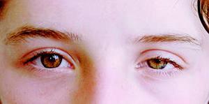 hipertenzija, bol u očima)