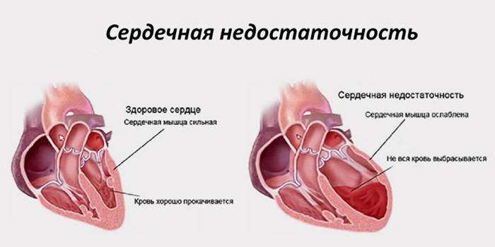 dispneja na hipertenziju