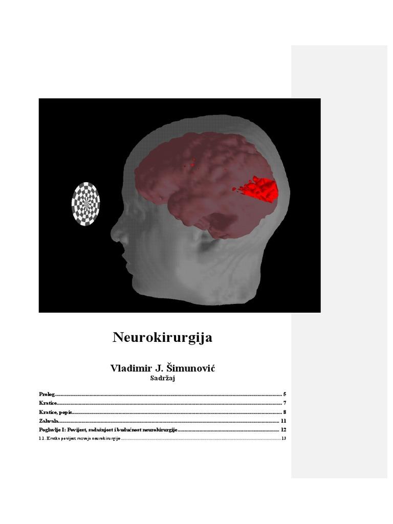 hipertenzija je fluoroskopski hipertenzija, glavobolja, tinitus