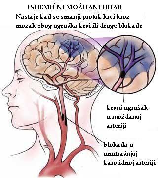 hipertenzije i mozga)