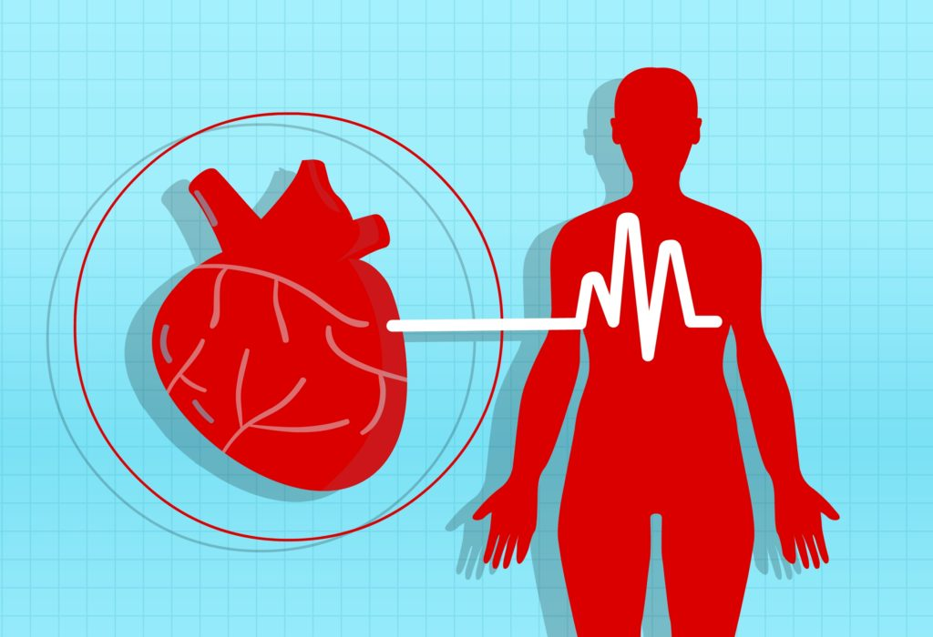 kako staviti hipertenzije