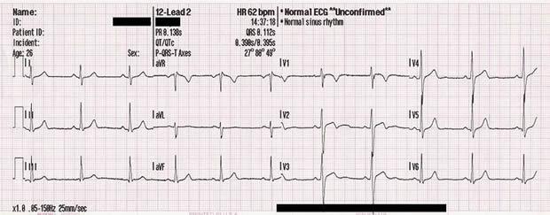 Zaključak EKG-a u hipertenziji ,liječenje hipertenzije s biljem