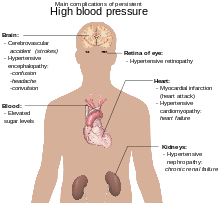 pneumatski ventil hipertenzija pulsiranja u vratu hipertenzije