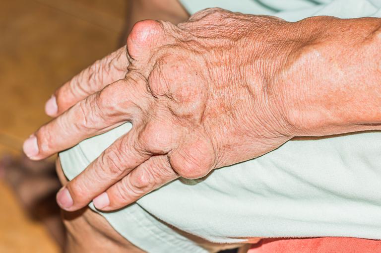 hipertenzije, giht liječenje