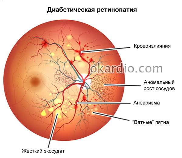 Sveobuhvatni pregled retinalne angiopatije: uzroci, liječenje