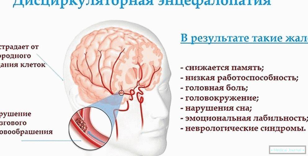 vaskularnih lezija u mozgu hipertenzije)
