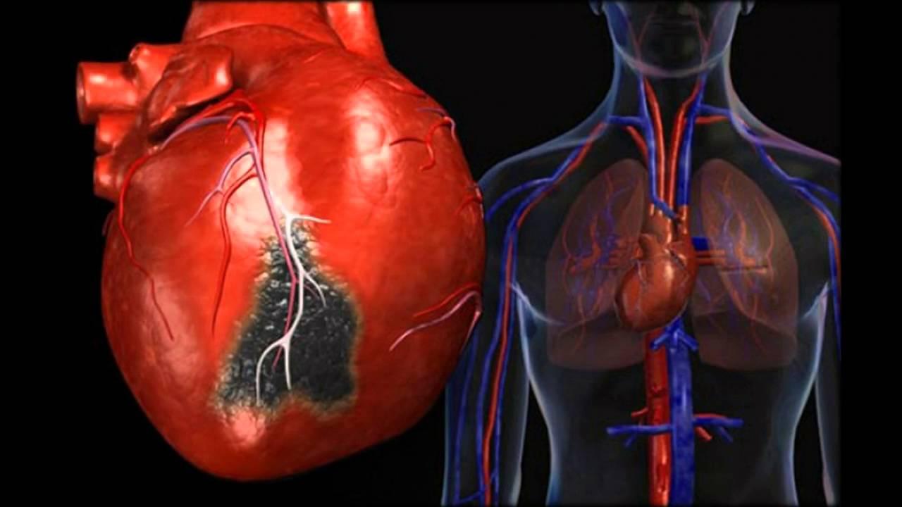 hipertenzija oskultacija