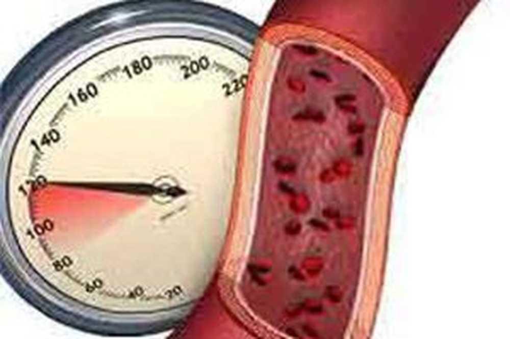 hipertenzija stupnja 2, a što je