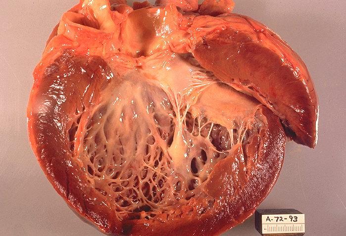 hipertenzija i kardiomiopatija da je