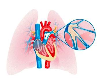 6 glavnih uzroka visokog krvnog tlaka
