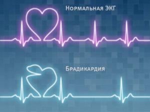 Kombinirani tretman hipertenzije