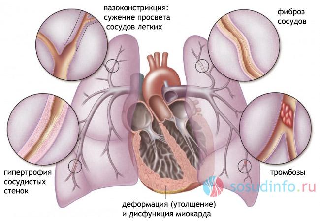 srčani lijevog ventrikula hipertenzija)