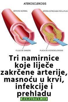 dijeta za srčane hipertenzije
