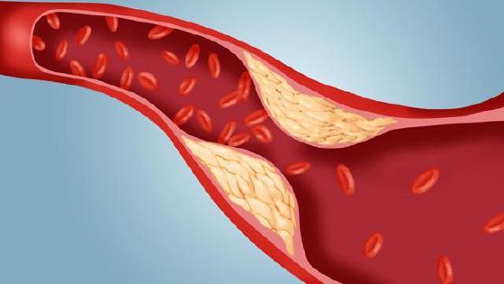 denas- terapija za hipertenziju