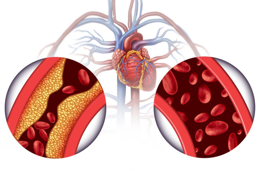 hipertenzija i izleti