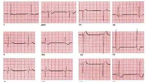 hipertenzije, bradikardija zastarjela postupak hipertenzije