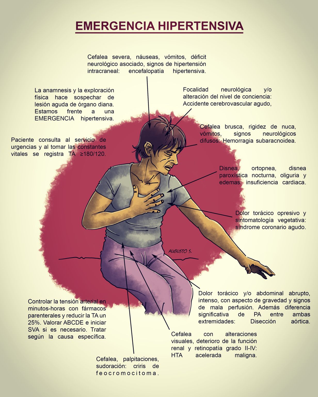 hipertenzivna sindrom med vode za hipertenziju