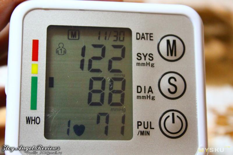 ekg hipertenzija prijepis)