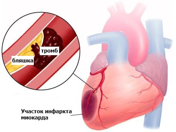 Uzroci bolova u prsima i leđima - Miozitis -