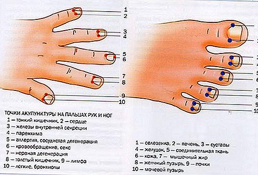 mišljenja akupunkture za hipertenziju