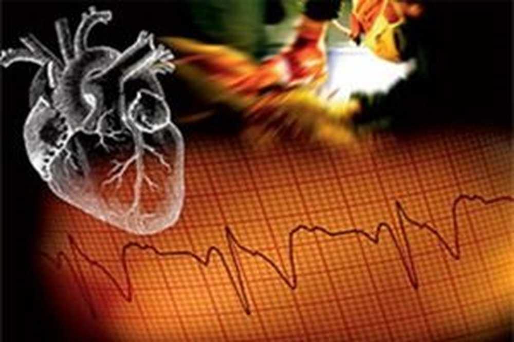 hipertenzija intravenozno