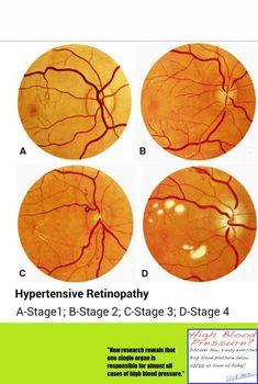 Povišeni arterijski tlak se vidi u očima