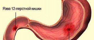 stupanj 2 medicinske povijesti hipertenzije