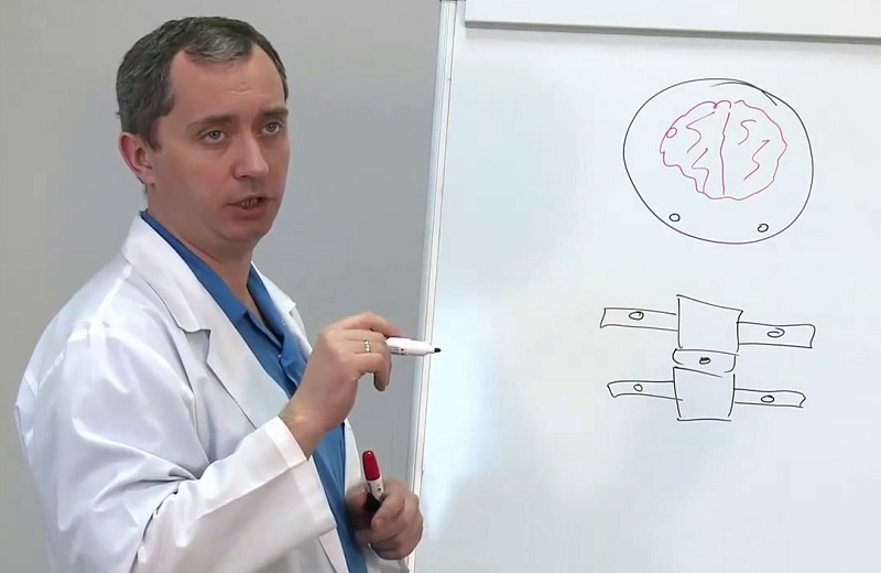 hipertenzije i farmaceuti)