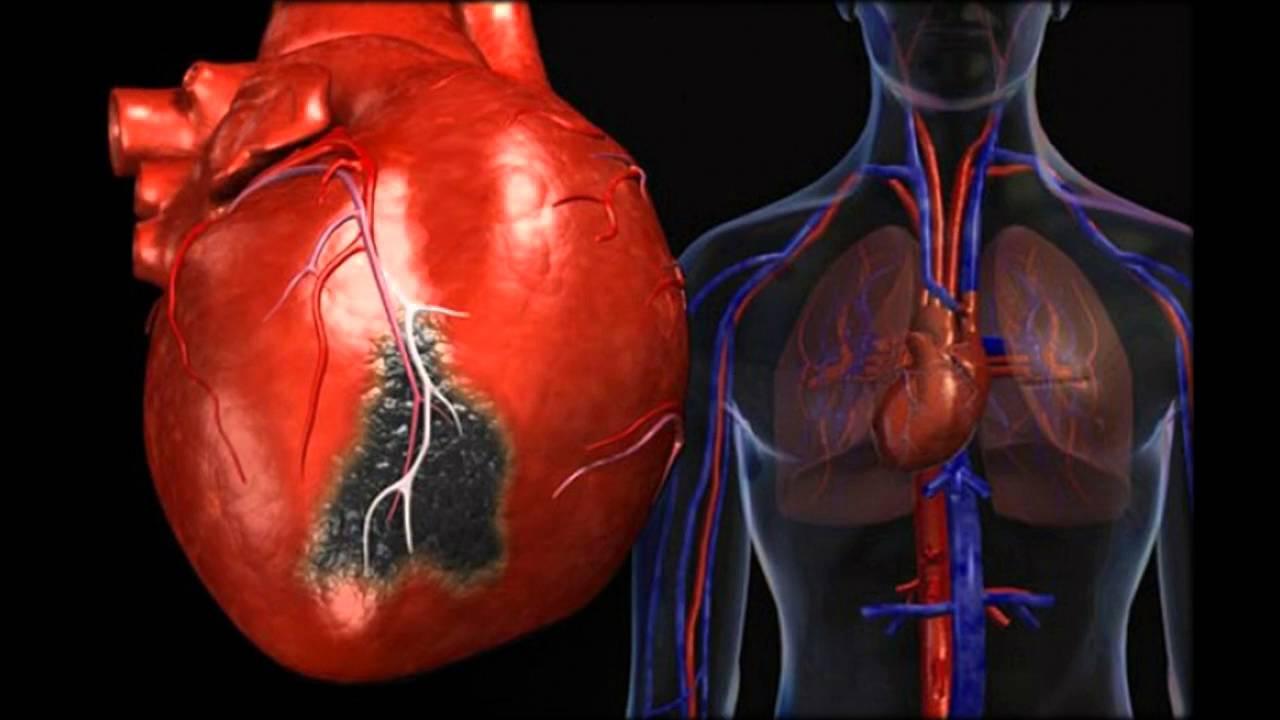 hipertenzivna bolest srca)