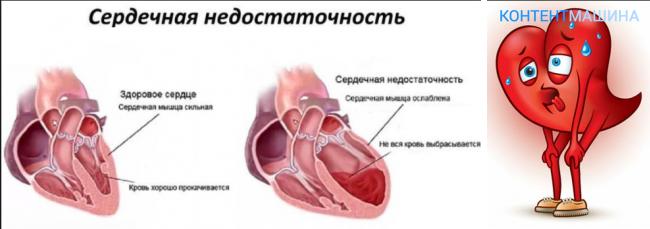 taktiku bolničar hipertenzija)