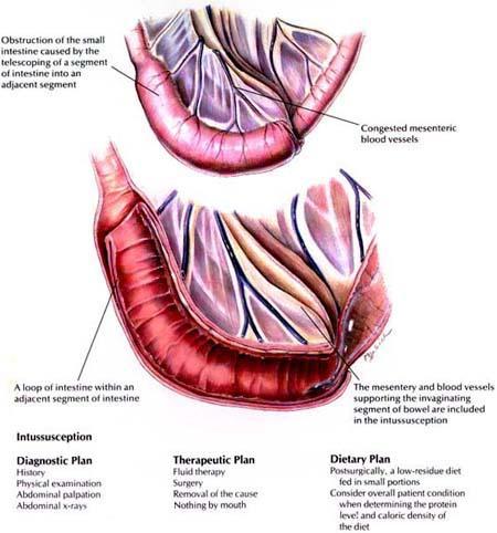 fiziološke hipertenzija flexors)