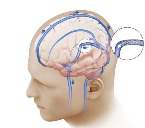 hipertenzije, hidrocefalus