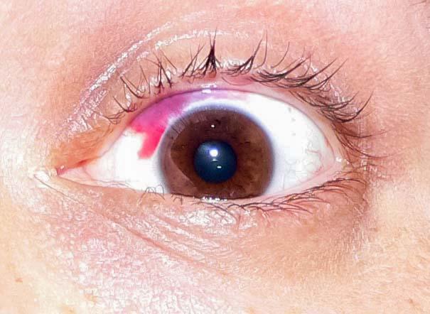 krvarenje u oku hipertenzije