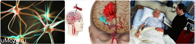 (PDF) REVERZIBILNA POSTERIORNA LEUKOENCEFALOPATIJA ILI TUMOR MOZGA – PRIKAZ BOLESNICE