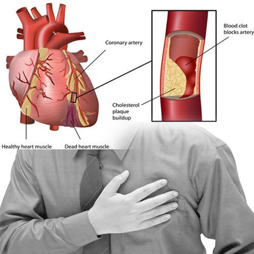 foto hipertenzija bolest)