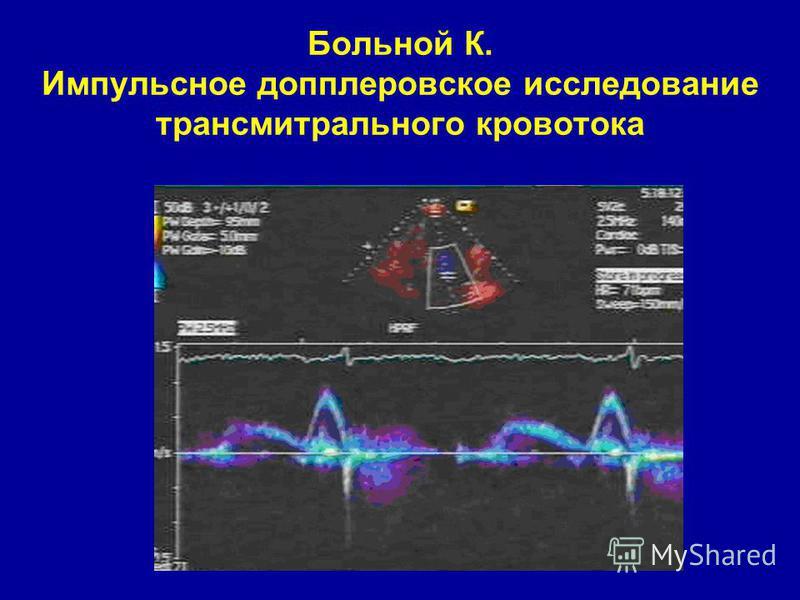srce na ultrazvuk hipertenzije)