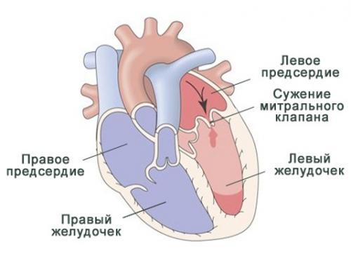 bol u srcu i kratkoća daha