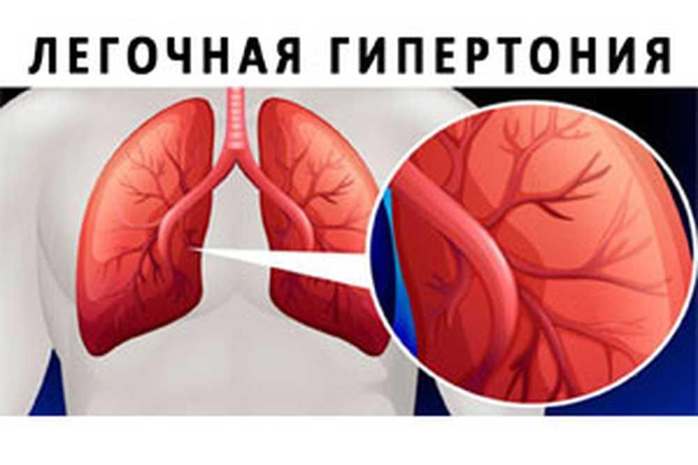 hipertenzija stupnja 2, a što je)