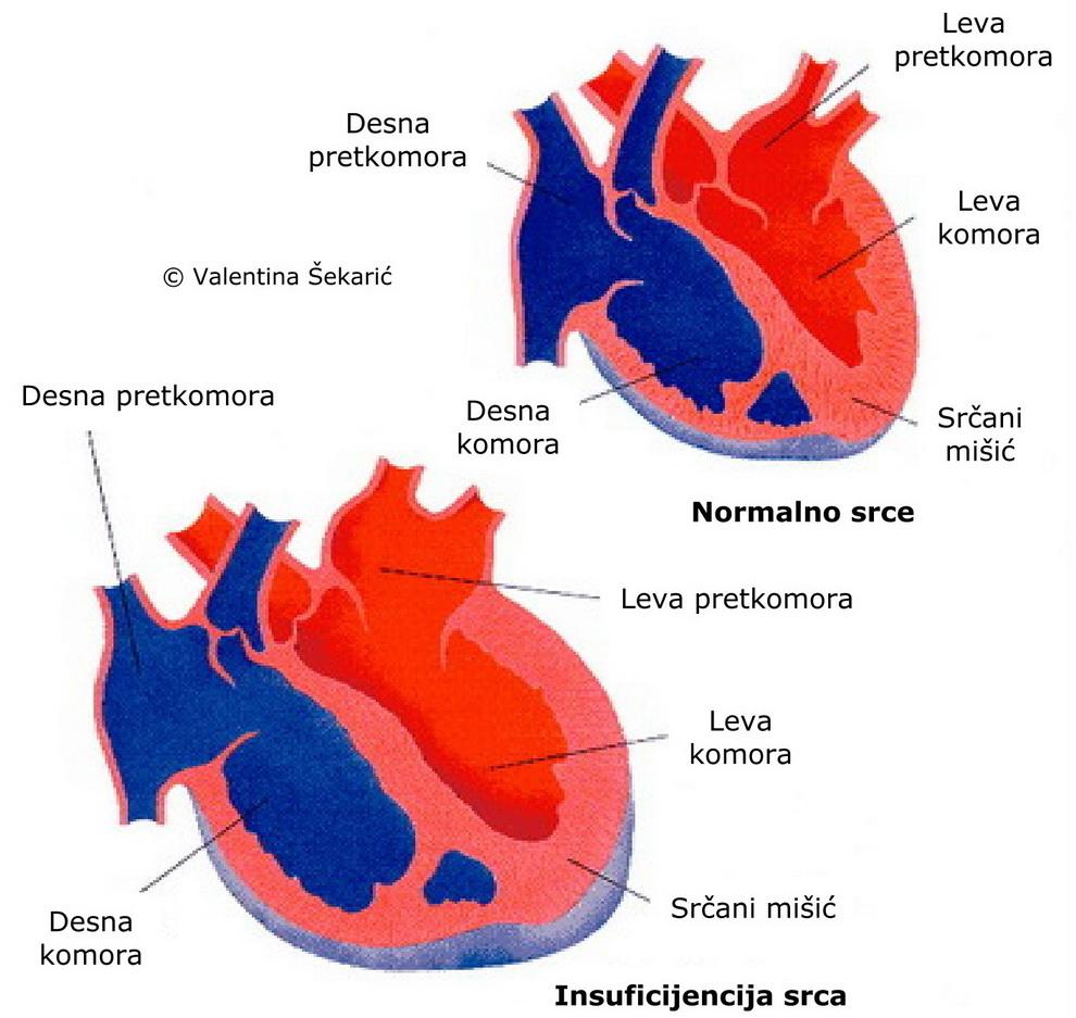 hipertenzija srca komora