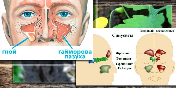 sok od hipertenzije celandine)