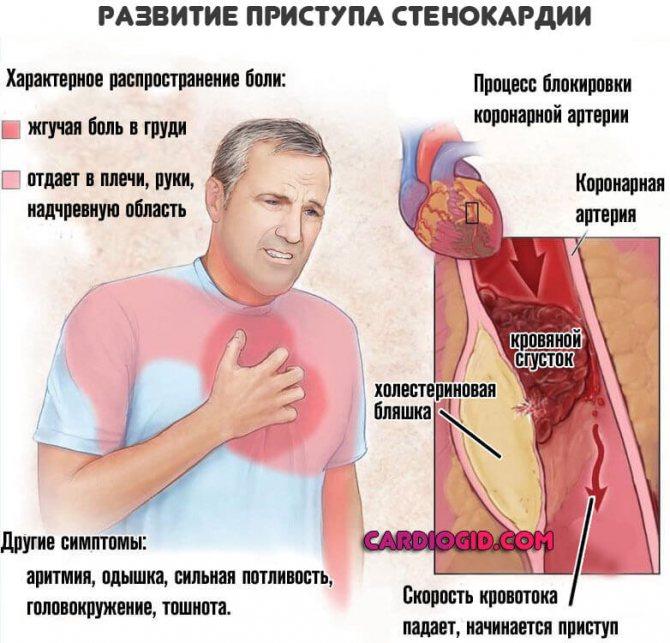 simptomi bol srca